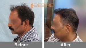 Hair Implant Process In Pune dhananjay kiran mandhare 4000 fue2-min