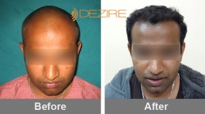 Hair Implementation In Pune mangesh 3000 fue-min