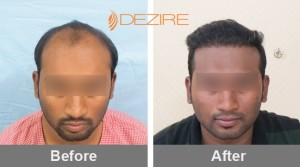 Hair Loss Replacement Cost In Pune nimish thorat 4000 fue-min