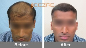 Hair Loss Replacement In Pune gaganjeet 3000 fue-min
