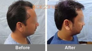 Hair Loss Restoration Cost In Pune mohit jain 3000 fue2-min