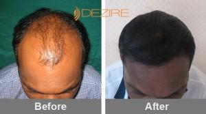 Hair Plantation Procedure In Pune kumar khilare 2000 fue2-min