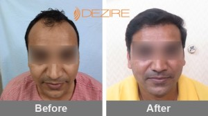 Hair Plug Surgery In Pune ganesh kamthe 2000 fue-min