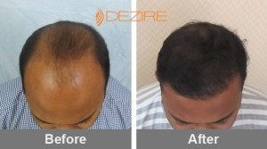 Womens Hair Transplant Cost In Pune channabasappa 1800 fue2-min