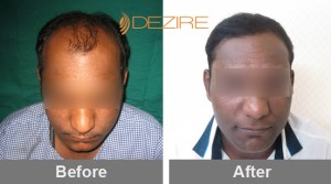Best Hair Transplant Clinic In Pune For Natural Permanent Hair