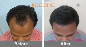Hair Transplant Recovery In Pune manish kanherkar 2000 fue2-min