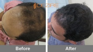 Hairline Grafting Cost In Pune gurucharan singh 1500 fue2-min