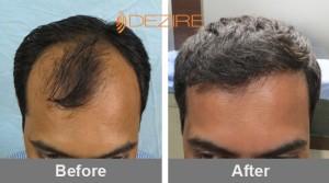 Hairline Grafting In Pune mahesh saswad 3000 fue-min