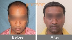 Hairline Restoration Surgery Cost In Pune neeraj bhushan 2800 fue-min