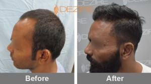 How To Stop Hair Loss In Pune nitin kumbhar 3000 fue2-min
