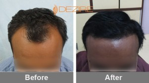 Latest Hair Plantation In Pune dr amol mohite 2000 fue2-min