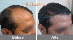 Male Pattern Hair Loss In Pune chandrakant shewale 3000 fue2-min
