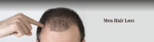 Men hair loss