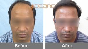 Mens Hair Transplant Cost In Pune nilesh mahajan 2000 fue-min