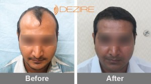Non Surgical Hair Transplant In Pune chandrakant shewale 3000 fue-min