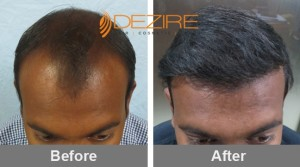 Promote Hair Growth In Pune pradeep kale 3000 fue2-min