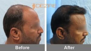 Real Hair Transplant In Pune gajanan malekar 3000 fue2-min