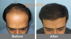Receding Hairline Treatment In Pune omkar 3000 fue2-min