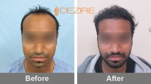 Stress And Hair Loss In Pune milind gaikwad 2132 fue-min