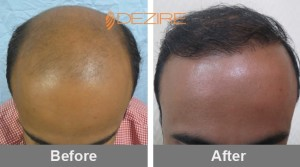 Stress Hair Loss In Pune kamal 2500+1200 body2-min