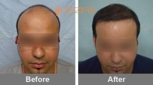 Thyroid And Hair Loss In Pune Himanshu pathak 4000 fue-min