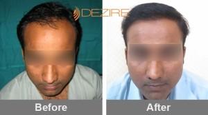 best hair transplant for men in pune amardeep ht-min