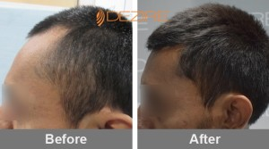female hair loss products in pune 2Dhananjay Ohal 1 yr 06-02-18-min