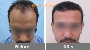 get hair transplant done in pune anurag kadam 2500 fue-min