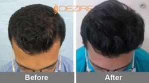 hair essentials for hair growth in pune 2akshay khalatagi 2146 fue-min