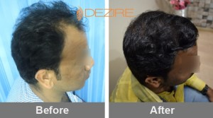 hair essentials for hair growth in pune bhavesh m patel 3300fue2-min