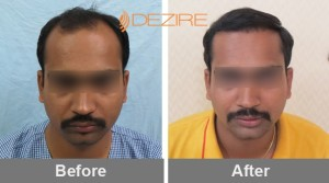 hair loss products for men in pune ajay chauhan 3000 fue-min