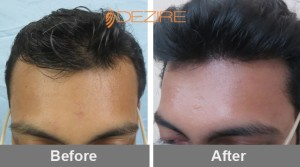 hair loss products for women in pune akshay khalatagi 2146 fue-min