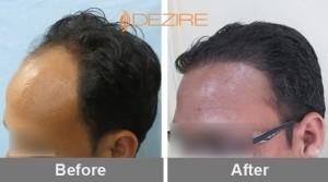 hair transplant guarantee in pune 2balaji bozgane 2560 fue-min