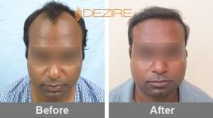 hair transplant guarantee in pune bhim singh 2500 fue-min