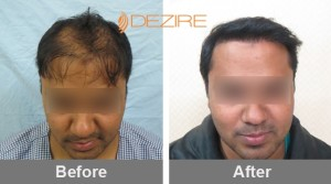 hair transplant surgery near me in pune amit verma re 2500 fue-min