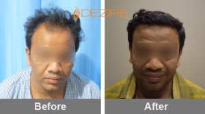 hairline implants in pune bhavesh m patel 3300fue-min