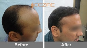 increase hair growth in pune 2amit atre 3106 fue grafts-min