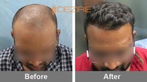 mens hair loss solutions in pune ali azgar 4000 fue-min