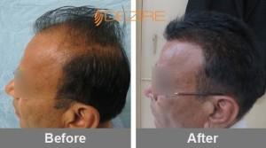natural hair growth in pune dattaray khairnar 2200 fue2-min
