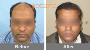 small hair transplant in pune dr ashish mishra 3000 fue-min