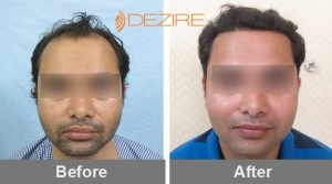 thinning hair solutions in pune akshay sabanis 2025 fue-min