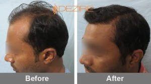 typical cost of hair transplant in pune 2ashish patil 2500 fue-min