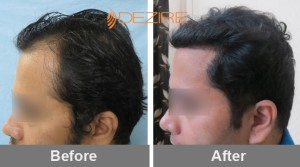 where to get hair transplant done in pune 2akshay sabanis 2025 fue-min