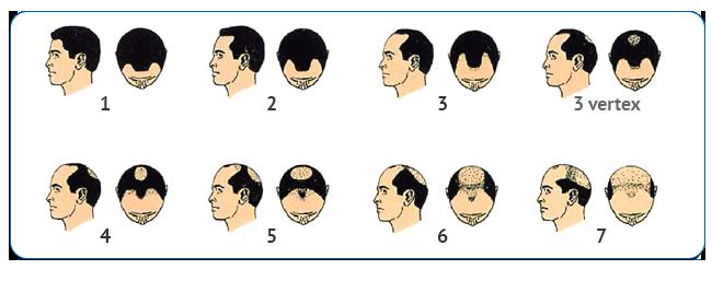 Norwood_pattern_baldness