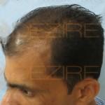 2000 grafts hair transplant cost