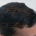 2500 grafts hair transplant images2500 grafts hair transplant images