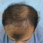Hair Operation Cost