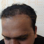Hair Restoration Physician in pune