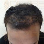 Hair Restoration Surgeon in India
