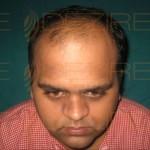 Hair Restoration Surgeon in Pune